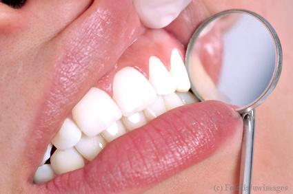 Parodontitis Zahnfleisch